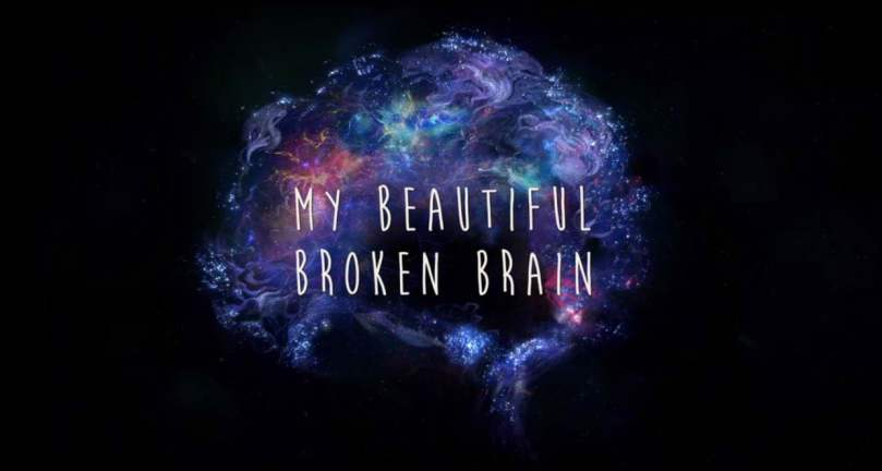 My Beautiful Broken Brain (1)