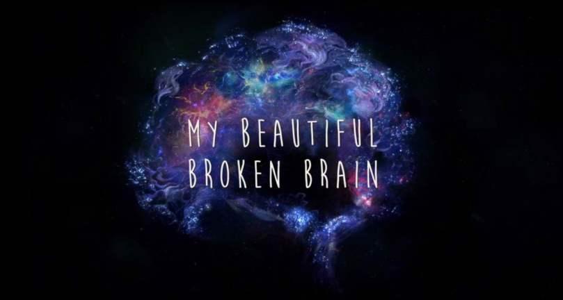 My Beautiful Broken Brain (1)
